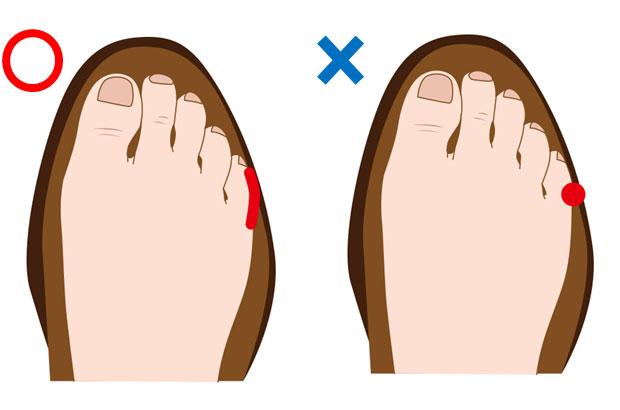 正しい靴のサイズと測り方 , 靴擦れのくるぶし・小指の痛み防止