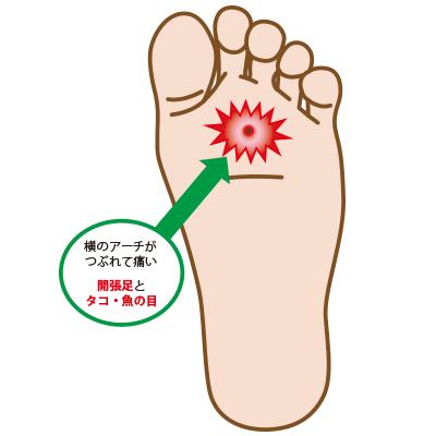 exposition_foot.jpg